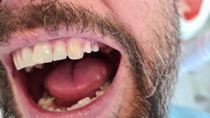 Bočné zuby po obrúsení - príprava na zubný mostík
