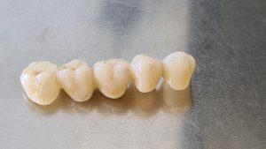 Ako vyzerá zubný mostík
