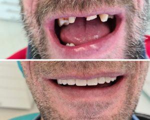 Zuby - pred a po - zubný mostík
